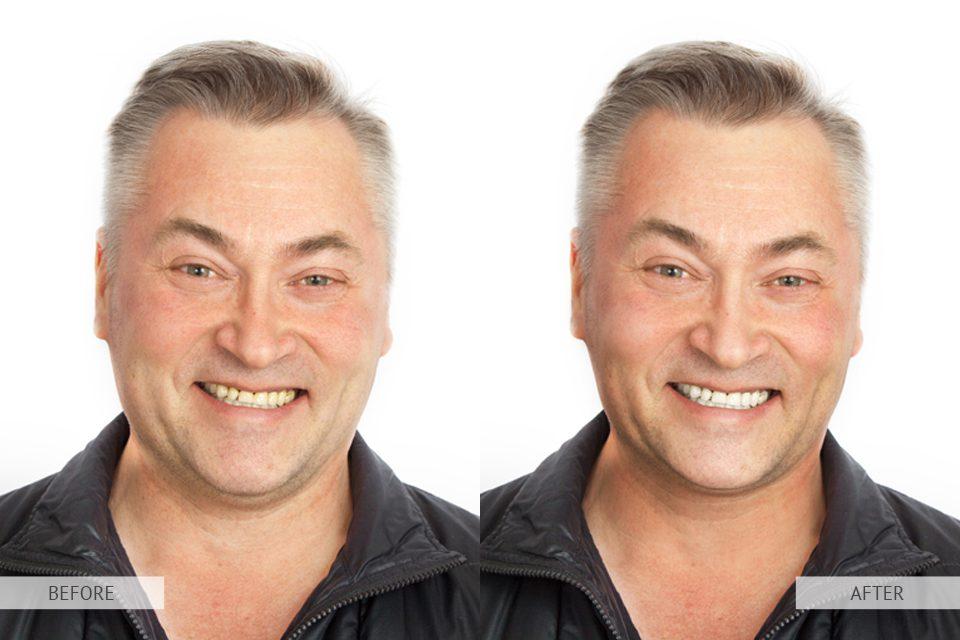 Tutorial de photoshop para eliminara la papada