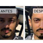 Inteligencia artificial puede quitar las sombras de tus fotos automáticamente